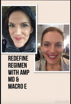 Kiera Smale White used the Redefine Regimen with the AMP Md and the Macro E.