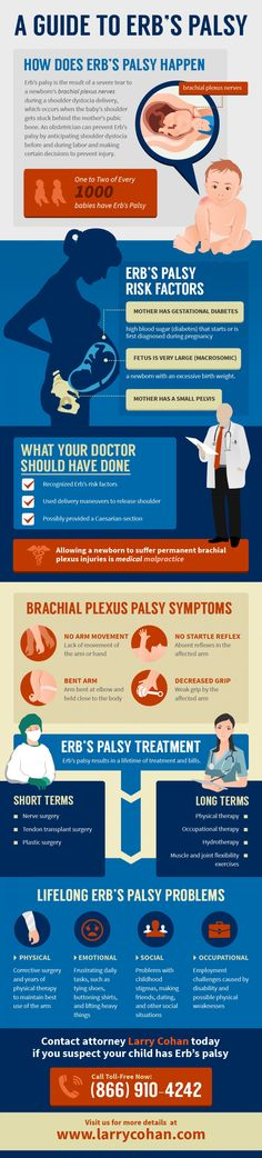 This is the guide to Erb's Palsy (Paralyze Injury) that happens to newborn baby. through this infographic we can learn about the cause, treatment and how to prevent that.