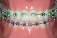 Colored Rubber Bands for Braces