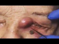 غسول وجه بارد #571 - YouTube Medical, Youtube, Medicine, Med School, Youtubers, Youtube Movies, Active Ingredient