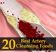 20 Best Artery Cleansing Foods