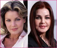 Priscilla Presley Plastic Surgery Nightmare – Cosmetic Surgery Priscilla Presley Plastic Surgery Nightmare Priscilla Presley Plastic Surgery Nightmare – hunter tylo plastic surgery before after Extreme Plastic Surgery, Bad Plastic Surgeries, Plastic Surgery Gone Wrong, Plastic Surgery Photos, Priscilla Presley Plastic Surgery, Celebrity Plastic Surgery, Under The Knife, Younger Skin, Lip Fillers