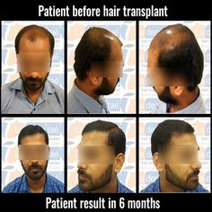 La densitae Hair Transplant is one of the best hair transplant clinic in nashik providing all modalities of treatment with latest techniques in Hair Transplant. Best Hair Transplant, Fall Hair, Pune, Clinic, Cool Hairstyles, Hair Falling Out, Sweet Hairstyles, Fancy Hairstyles