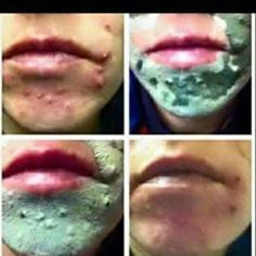 Nu Skin, Epoch Mud Mask, Marine Mud Mask, Glacial Marine Mud, Nerium, Skin Care, Countries, Beauty Products, Diamond