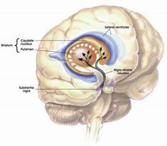 Parkinsonism is a condition relating to a series of symptoms that mimic the movement disorders in Parkinson's disease. This includes impaired speech, stiffness of the muscles, slow movement, and visible tremors. These symptoms are caused by a dwindling supply of neurons or nerve cells that contain the substance dopamine. While Parkinson's disease commonly causes Parkinsonism, not all people diagnosed with Parkinsonism are afflicted with Parkinson's disease. #parkinsonism #parkinson…