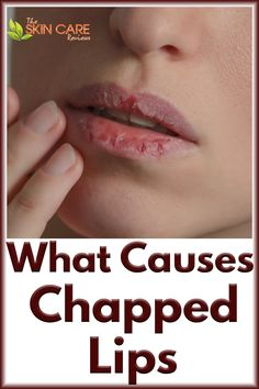 Have you ever wondered what causes dry chapped lips? Some of these causes may surprise you. Find out about them so you can have moisturized lips and prevent chapped lips. Jump to theskincarereviews.com #chappedlipscauses #whatcauseschappedlips #drychappedlipscause Subcutaneous Tissue, Dry Skin Remedies, Clear Skin Tips, Sensitive Skin Care, Dry Lips, Lip Moisturizer, Healthy Skin Care, Good Skin, Skin Care Tips