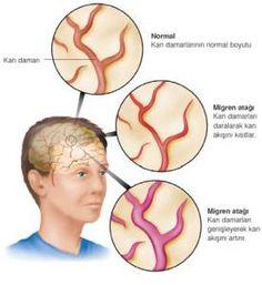 Migren Nedir http://www.migrenbelirtileri.net/migren-nedir-migren-nasil-olusur/