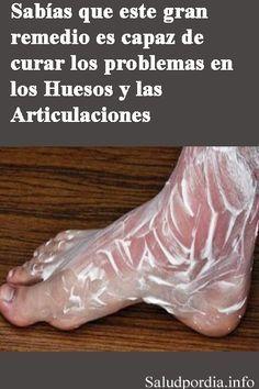 Sabías que este gran remedio es capaz de curar los problemas en los Huesos y las Articulaciones