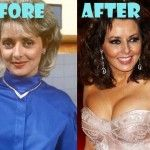Carol Vorderman Plastic Surgery Breast Implant, Nose Job