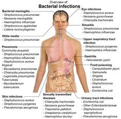 usmlenotes:  Bacterial Infections in a nutshell!