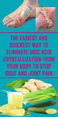 Easy Ways To Remove Uric Acid From Your Joints - The Health Resolution Health Tips For Women, Health And Beauty Tips, Health Advice, Herbal Remedies, Health Remedies, Natural Remedies, Arthritis Remedies, Wellness Fitness, Health And Wellness