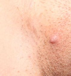 Ingrown Hair Remedies on Pinterest | Hair Home Remedies, Hair ...