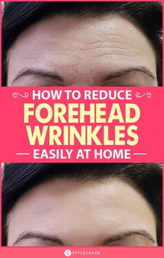 As you grow older, furrow lines, also called frown lines, can appear on your forehead. However, they are no longer restricted to the phenomenon of aging. Moisturizer For Oily Skin, Oily Skin Care, Face Skin Care, Home Remedies For Wrinkles, Best Skin Care Regimen, Face Wrinkles, Rides Front, Make Up, Beauty Tricks