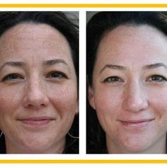 Before and after with using Rodan and Fields REVERSE... sun damage IS reversible!