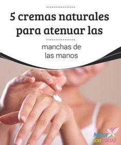 5 cremas naturales para atenuar las manchas de las manos  Las manos están expuestas a una gran cantidad de agentes agresivos del ambiente que, con el paso de los años, van ocasionando alteraciones en la piel como las arrugas tempranas o esas antiestéticas manchas.