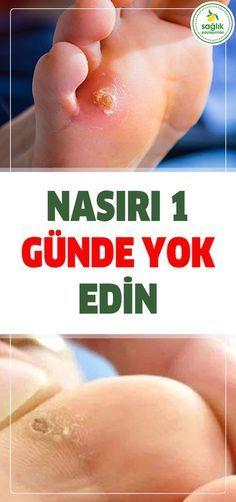 Nasırı 1 Günde Yok Edin! #nasir #sağlık Herbal Remedies, Natural Remedies, Health Tips, Health Care, Turkish Kitchen, Vegan Protein, Herbal Tea, Diet And Nutrition, Body Scrub