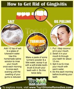 How to Get Rid of Gingivitis Fast #gumdisease #homeremedies #top10homeremedies