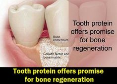 Tooth protein offers promise for bone regeneration | OVI Dental