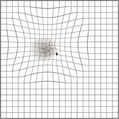 How To Use The Amsler Grid Eye Facts Macular Degeneration Grid