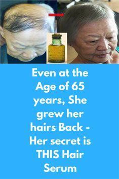 Even at the Age of 65 years, She grew her hairs Back - Her secret is THIS Hair Serum This serum is like a magic potion, which helps stimulate hair growth very fast. No more to hair loss and baldness. This serum is made with old herbal oils that stimulate the hair follicles and restart the growth of fallen hair. To make this serum you will need Following ingredients: 20 ml of Castor oil. 20 …