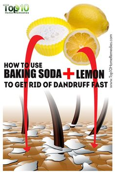 How to Use #Baking #Soda and #Lemon to Get Rid of #Dandruff Fast (Bake Face)