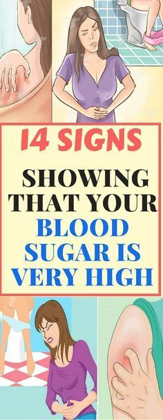 14 SIGNS SHOWING THAT YOUR BLOOD SUGAR IS VERY HIGH!