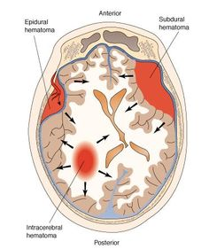 Epidural Hematoma - bleeding between the skull and the dura mater [outer layer of the brain]. Caused by a skull fracture that ruptures an artery. Blood accumulates inside and presses against the brain. This will increase the ICP.  This is what happens with this type of injury- injury [you get knocked on side of the head], loss of consciousness, recovery period [wake up], you continue bleeding inside [can't compensate any longer, ICP increases], you pass out again [neuro changes occur.] Thi