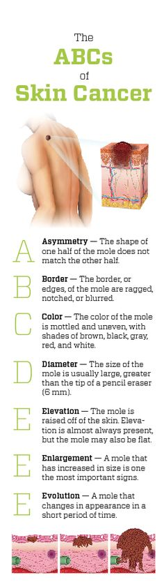 The ABCs of Skin Cancer (infographic) #SkinCancer #Dermatology #NIP #Health #Nursing #Skin #Cancer #Sun