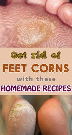 Get rid of feet corns with these homemade recipes.