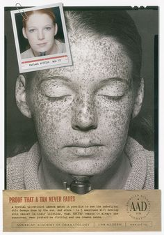 A suntan lasts forever.  A poster from the American Academy of Dermatology.
