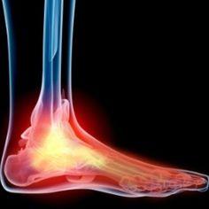NB sneakers help to prevent feet pain Health And Beauty Tips, Health Tips, Health Care, Health And Nutrition, Health And Wellness, Health Fitness, Natural Medicine, Herbal Medicine, Health Remedies