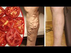 Tenía mis Piernas llenas de Varices y un Doctor me dijo usará Tomate par...