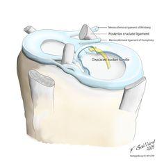 Menisci and bucket handle tear (illustration) | Radiology Case | Radiopaedia.org Medical Science, Medical School, Medial Meniscus Tear, Avulsion Fracture, Anatomy Images, Skull Anatomy, Diagram Chart, Anatomy And Physiology, Radiology