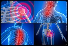 ■Fibromyalgia is a combination of chronic pain in muscles, tendons, ligaments   ■With Fibromyalgia IBS, CFS, Headaches, Fatigue and sleeping problems can be present   ■Effects 2% of population, and 85% of them are women (Werner 2009)   ■Combination or hormonal and neuro imbalances   ■Presents as musculo-skeletal system pain, but is a central nervous system problem (Werner)   ■Client does not get level 4 sleep to enable correct depth of rest