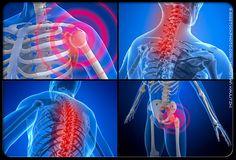 Fibromyalgie: causes, diagnostique, symptômes et traitement