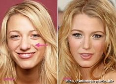 GossipGirlactressseems to haveputthe knifein the past toimprove their imagedespitehis young age.By this Imean arhinoplastyBlakeLively. Blake Lively plastic surgery By comparing thepictures on the left, taken whenLivelyattended high schoolwiththe right,taken