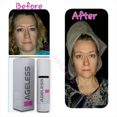 Just look how clear and smooth her skin is I love ageless, www.nanue06.tryagelesstoday.com