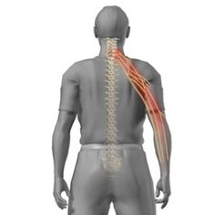 Degenerative disc disease in neck usually affects the cervical vertebrae. Degenerative disc disease in the cervical region is much less common than that of Neck And Shoulder Pain, Neck And Back Pain, Dorn Therapie, Severe Neck Pain, Radiculopathy, Neck Exercises, Arthritis Exercises, Arthritis Remedies, Neck Stretches