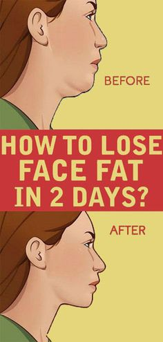 Many people dream of having enticing and definite look when it comes to unique facial features. At the same time many people are struggling to get rid of double chin and chubby cheeks even and didn't see any positive results in shaping their face out Loose Face Fat, Reduce Face Fat, Lose Fat In Face, How To Lose Fat, Fat To Fit, Cheek Fat, Double Menton, Chubby Cheeks, Tips Belleza