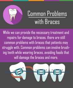 Orthodontics is a necessary option for many patients looking to keep healthy and straight teeth! Dental Braces, Dental Care, Oral Health, Dental Health, Dental Posters, Orthodontic Appliances, Dental Cosmetics, Emergency Dentist, Smile Makeover
