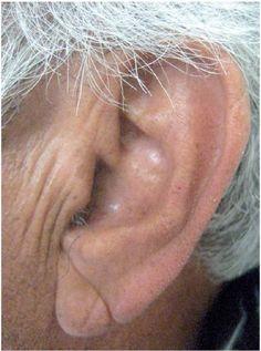 fogyás és elzáródott fül id olasz design test karcsúsító