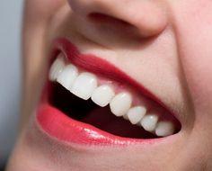 Las sonrisas de las personas se caracterizan por tener dientes de un color uniforme y blancos! dental advance