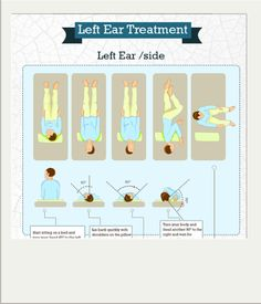 Epley Maneuver Guide (1)