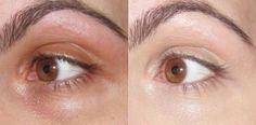 Use bicarbonato debaixo dos olhos para tirar olheiras