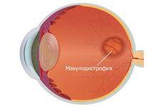 Макулодистрофія – це захворювання сітківки ока. Страждає при цьому її центральна частина – жовта пляма – місце, на якому фокусується світловий потік. Саме тут знаходяться клітини, що забезпечують гостроту зору і кольоросприйняття – колбочки і палички. Макула