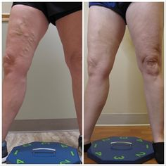 ‼️VEIN TREATMENT Results ‼️ This patient suffered with their veins and visited Dr. Wright. Look at these amazing results! 🙌  Message or call 636-614-1665 to schedule your appointment ~ in-person or virtual. Dr Wright, Varicose Veins, Liposuction, Schedule, Spider, Medical, Amazing, Timeline, Spiders