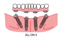 All on 4 dental implants allows the implantation to take place even in the mouths of people who have less than adequate amounts of bone. Most implants of this nature require a large amount of jawbone for the dentist to implant the titanium devices in. - See more at: http://www.extremesmilemakeover.com/dental-services-san-diego-dentist/all-on-4-dental-implants
