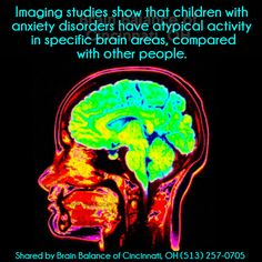 #Imaging #studies show that #children with #anxietydisorders have atypical #activity in specific #brain areas, compared with other #people.  (Source: National Institute of Mental Health) #braininfo #brainstudies #brainfacts #anxiety #Cincinnati #OH #Ohio #addressthecause #brainbalance #afterschoolprogram