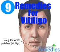 9 Herbal Remedies For Vitiligo - Treatments & Cure For Vitiligo Skin Treatments, What Is Vitiligo, Super Pictures, I Got You, Herbal Remedies, Natural Health, Herbalism, The Cure, Salud