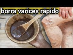 Herbal Remedies, Natural Remedies, Health And Wellness, Health Tips, Denim Crafts, Varicose Veins, Doterra, Alter, Walking